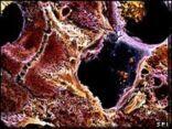 دراسة تظهر امكانية الشفاء من مرض تليّف الكبد
